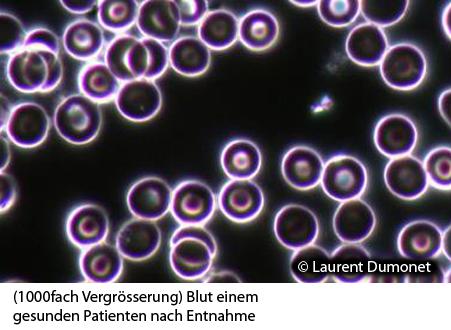 Blut Dunkelfeldmikroskopie 1000fach Vergrösserung